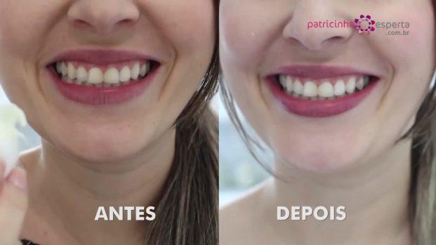 IMG 00034 621x349 - Clareamento dental com BICARBONATO e LIMÃO ⬅