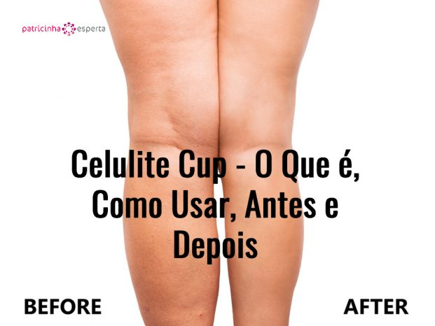 womans legs before and after weight loss picture id621838860 621x466 - Celulite Cup - O Que é, Como Usar, Resenha