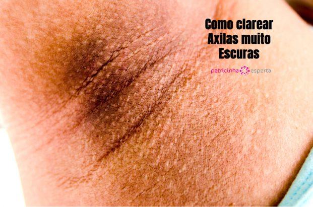 closeup black armpit pregnancy women effect picture id546193190 621x411 - Como Clarear Axilas Escuras?