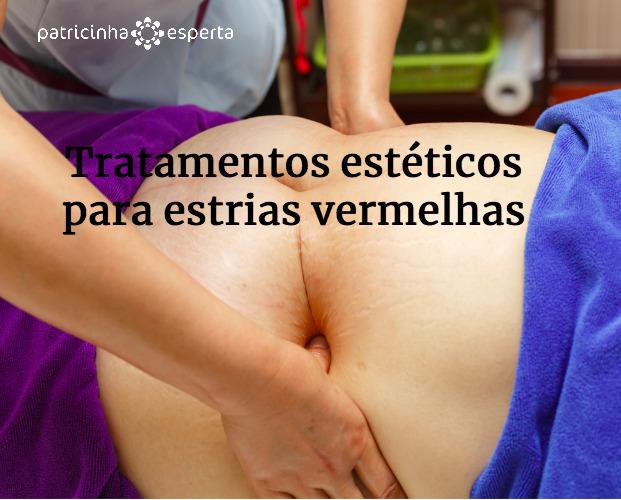abdomen slimming massage picture id543673616 - Estrias Vermelhas: Como tirar?