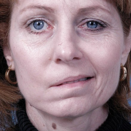 New treatment offers hope for facial paralysis patients