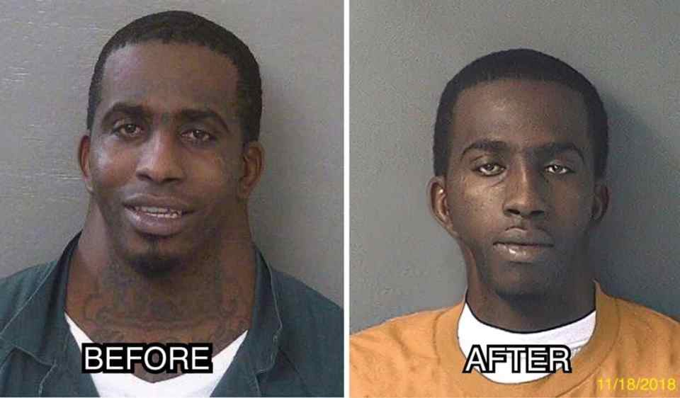 "Florida's ""Neck Guy"" Arrested Again Undergoes Plastic Surgery To Decrease Neck Size And Removes Tattoos; His Mugshot Had To Be Updated"