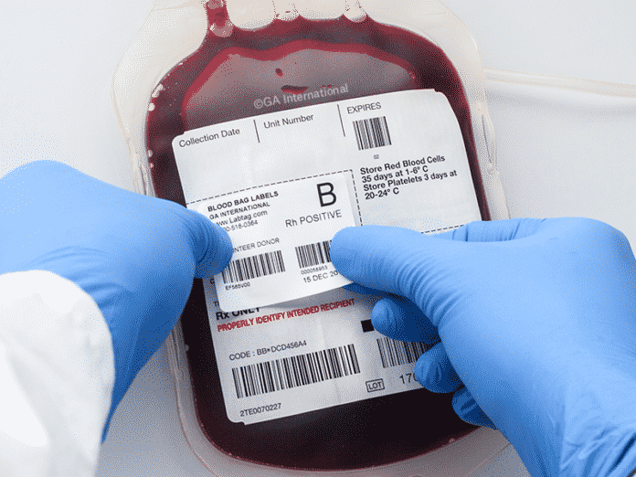 What's the Most Common Human Blood Type?