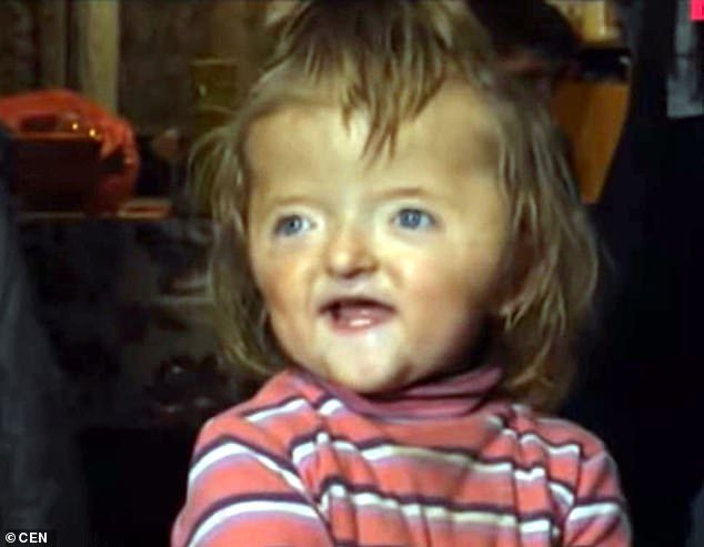 Nursery bans 2 year old with deformed skull.