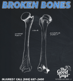 Broken Bones And Fractures Injury Claim Value Should You Sue