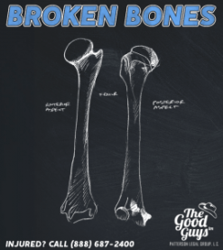 Broken Bones and Fractures | Injury Claim Value | Should You