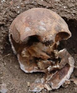 Skull of murder victim Julia Thomas.