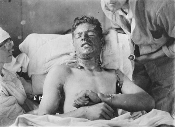 Mustard Gas victim WWI