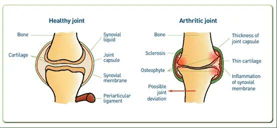 arthritic versus healthy joint diagram