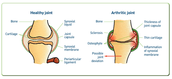arthritic versus healthy joint diagram