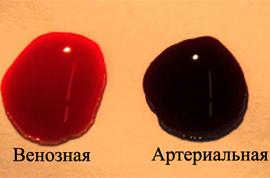 Почему кровь почти чёрного цвета из вены, но не густая? Венозная кровь.