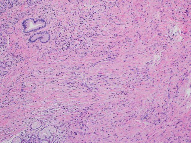 Case1 Figure4 10x fibrosis
