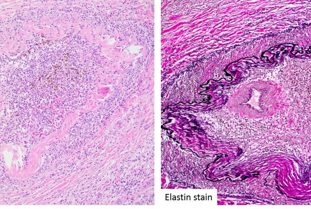 Figure 6. High power image of pancreatic mass (H&E (left) and Elastin stain (right), 400x magnification).