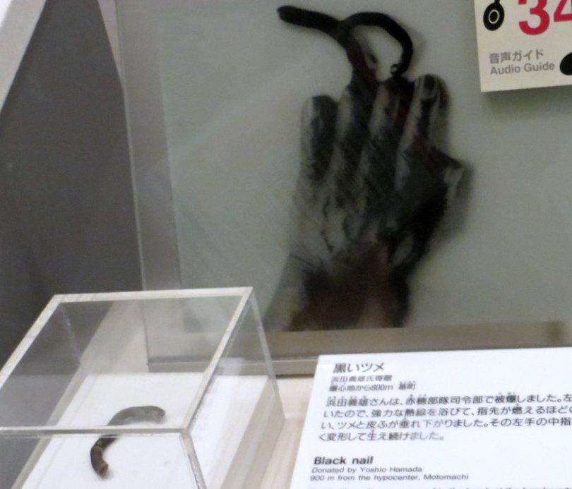 Image result for Hiroshima victims black fingernails