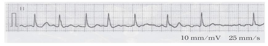 test ツイッターメディア - 心電図を次に示す。この患者に最も生じやすいのはどれか。 1、脳出血 2、脳塞栓 3、脳血栓 4、ラクナ梗塞 5、くも膜下出血 答えはこちら↓↓ https://t.co/unAIXHrxtn  https://t.co/dAgvL0R0Ux