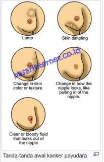 Tanda - tanda awal kanker payudara
