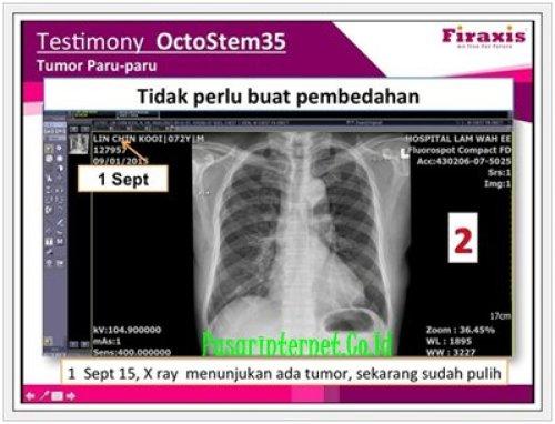Testimoni Octo stemcell35 Tumor paru - paru tidak jadi dioprasi