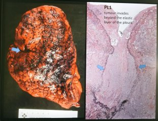 Image result for lung adenocarcinoma