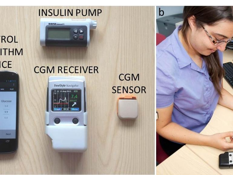 Android artificial pancreas could revolutionise diabetes management  #IoT #Digitalhealth