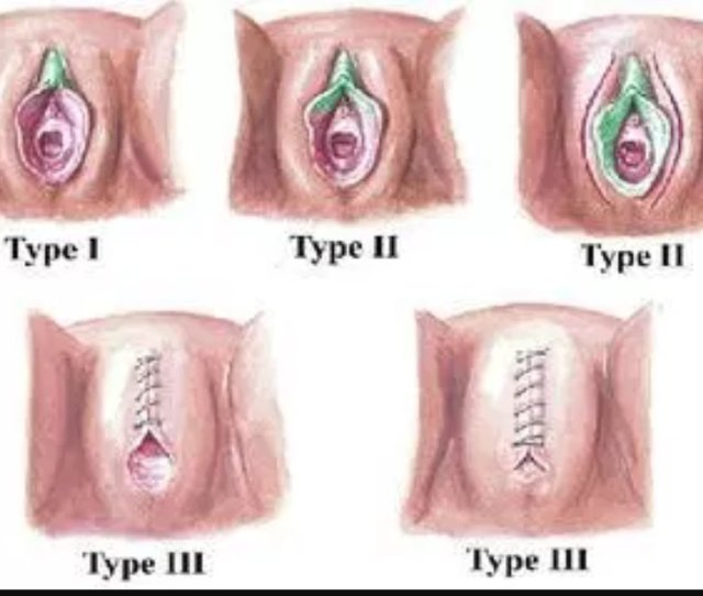 Hibo Wardere On Twitter Nofgm Type 3 Is Total Removal Of The Clitoris And Labia Minora And Labia Majora Then They Stitch Up Leaving Match Stick Hole To