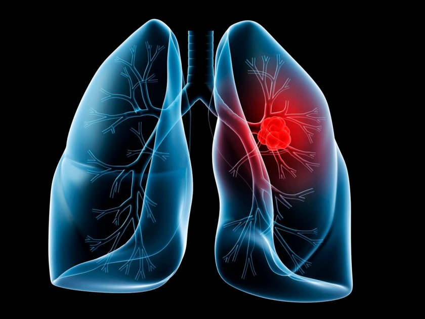 """85 percent of lung cancer cases are smoking-related,"" says a Johns Hopkins expert."