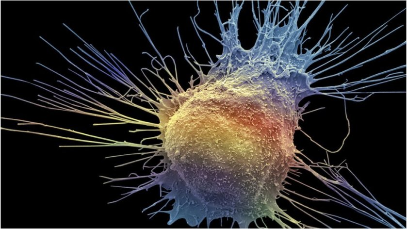 Ulster University scientists claim prostate cancer 'discovery'