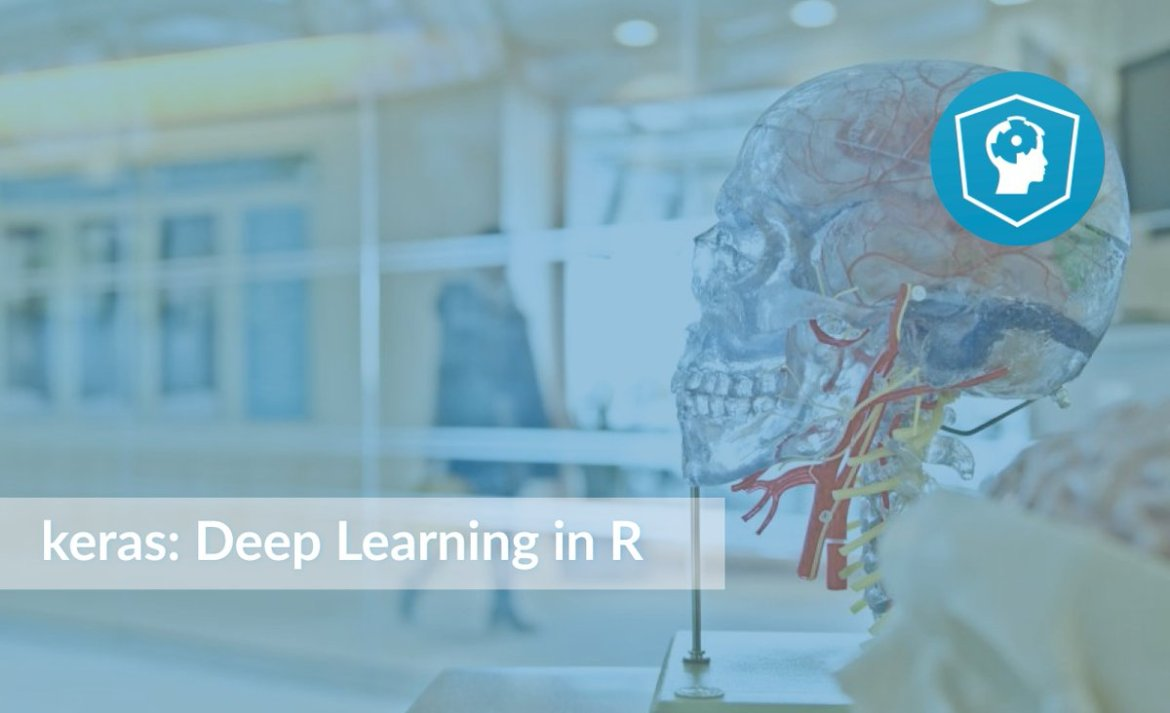 keras: Deep Learning in R tutorial - harness the power of deep learning with R!