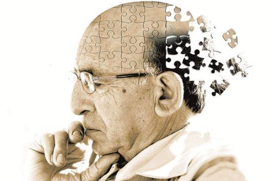 Image result for alzheimer y actividad fisica