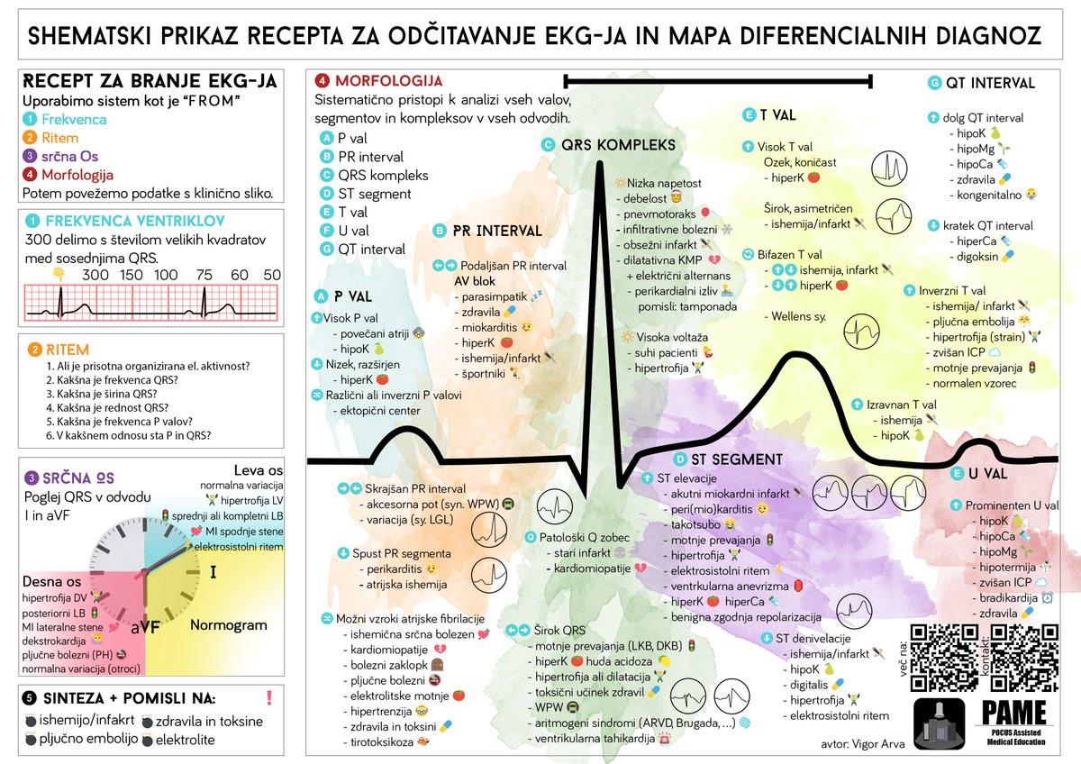 Ekg Diagram Worksheet