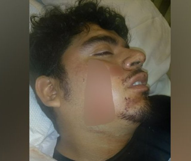 Mexican American Man Recovering From Stabbing He Says Was Racially Motivated Https