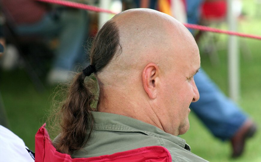 Patrick On Twitter Jojo Siwas Hairline By The End Of