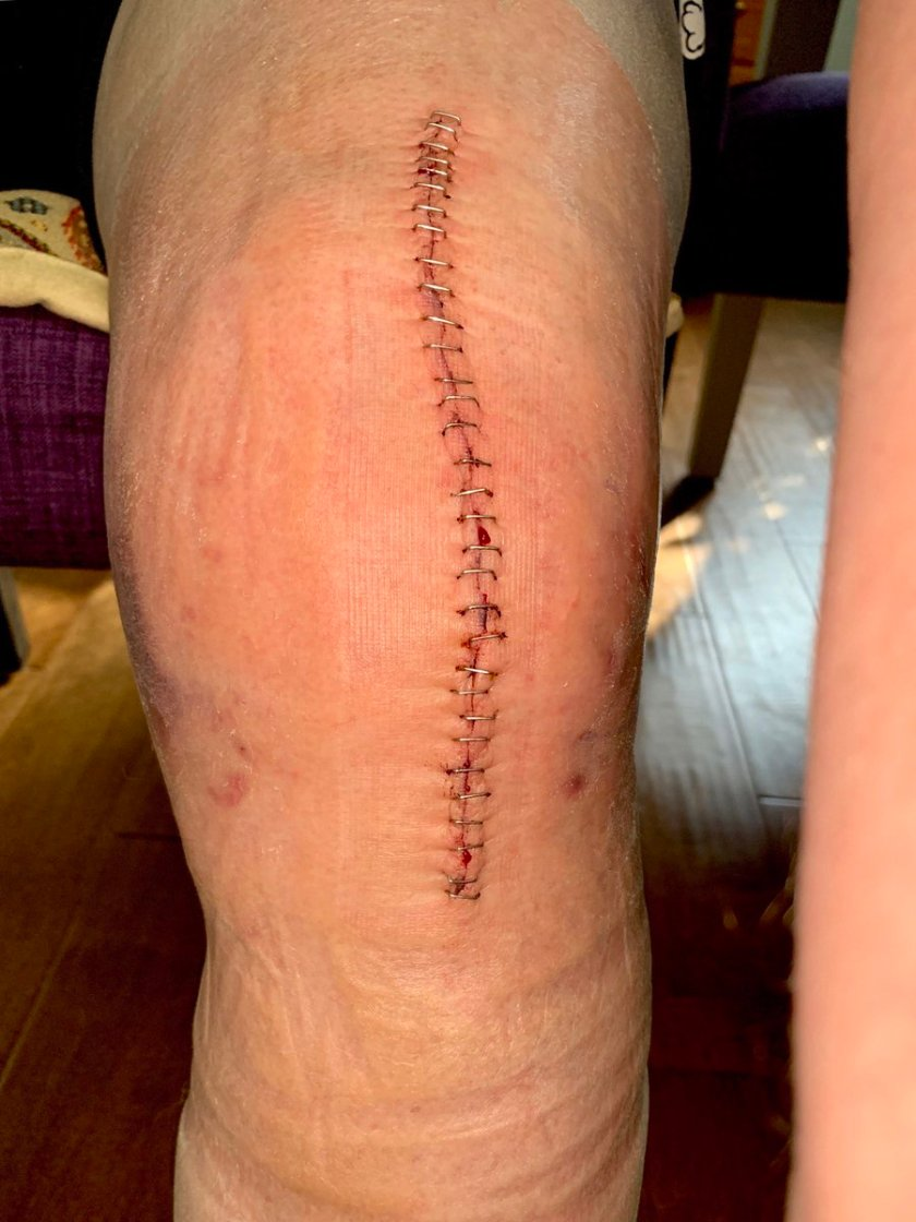 Post-surgery knee with staples