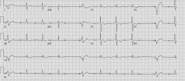 managed ventricular pacing mvp feature medtronic academy - 1170×518