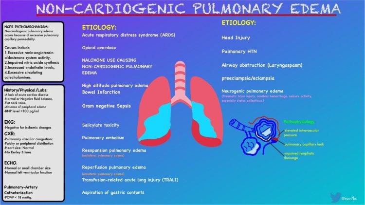 MedTweetorial: #Tweetorial Author: @rav7ks  Type: #Pathophysiology  Specialty: #Cards #Cardiology #EmergencyMedicine  Topics: #NCPE #NonCardiogenicPulmonaryEdema #Opioid #Overdose #Naloxone