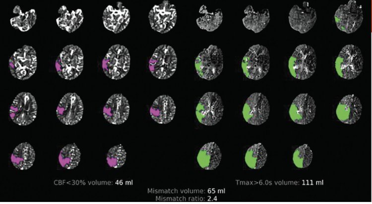 MedTweetorial: #Tweetorial Author: @SharashidzeVera  Type: #Pathophysiology Specialty: #Radiology #Neurology #Neuro Topics: #CTP #ComputedTomographyPerfusion #CTPerfusion #Stroke #CBV #CBF #CapillaryBloodFlow #CapillaryBloodVolume