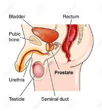 MedTweetorial: #Tweetorial Author: @tufftybluey   Type: #MedEd #Pathophysiology Specialty: #Urology #FM #FamilyMedicine Topics: #ProstateCancer #Prostate #PSA