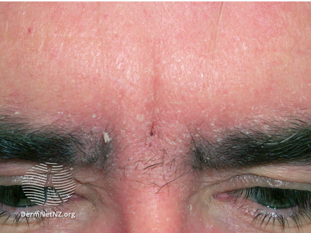 MedTweetorial: #Tweetorial Author: @DrStevenTChen   Type: #MedEd Specialty: #Derm #Dermatology Topics: #SecondaryLesion #DermatologyPhysicalExam #PhysicalExam #Morphology