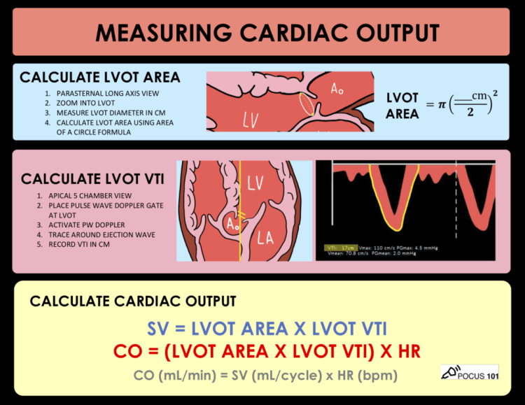 MedTweetorial: #Tweetorial Author: @Pocus101  Type: #MedEd #GraphicMed Specialty:  #Cardiology #CardioTwitter Topics: #POCUS #CardiacOutput #LVOT #HeartRate #StrokeVolume #CardiacOutput