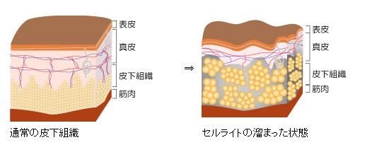 皮下脂肪 (ひかしぼう) - Japanese-English Dictionary - JapaneseClass.jp
