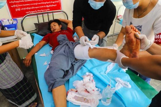 13 일 미얀마 만달레이에서 열린 시위에서 부상당한 시위자가 치료를 받고있다. [AFP=연합뉴스]