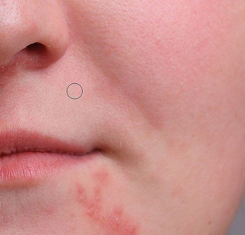 Removing more pimples with the Spot Healing Brush. Image © 2013 Photoshop Essentials.com