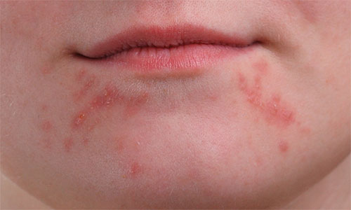 A close-up of the girl's chin showing larger clusters of pimples. Image © 2013 Photoshop Essentials.com