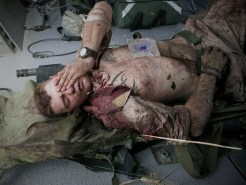 (3 of 7) Injured U.S. Marine Cpl. Burness Britt, after being lifted onto a medevac helicopter, on June 4, 2011. Britt was wounded in an IED strike, a large piece of shrapnel cutting into a major artery on his neck. (AP Photo/Anja Niedringhaus) #
