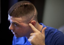 (6 of 7) Marine Cpl. Burness Britt points to the scar on his head in his room in the Hunter Holmes Medical Center in Richmond, Virginia, on December 13, 2011. (AP Photo/Anja Niedringhaus) #