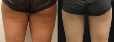 Coolsculpting beforeafter 2