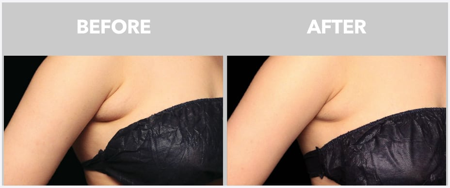 image of before and after coolsculpting