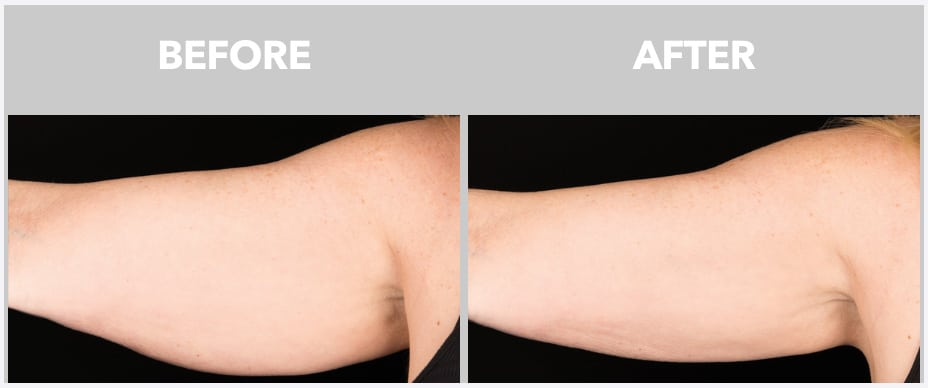 photo of an arm before and after coolsculpting at peace.love.med.