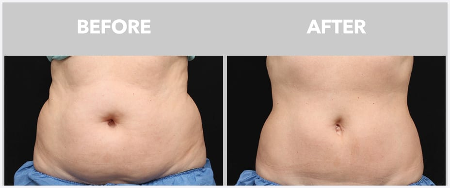 image of before and after coolsculpting in boca raton