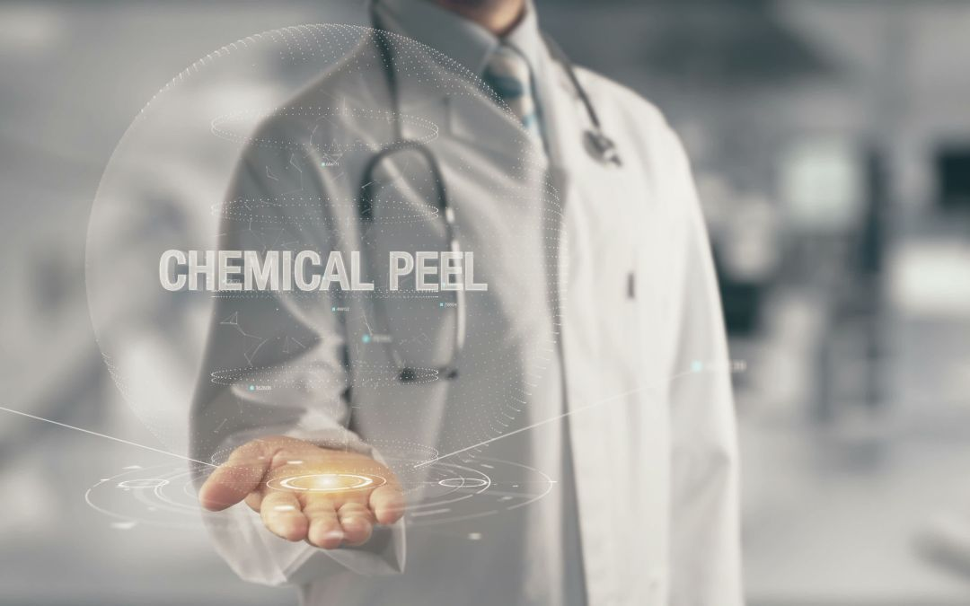 Chemical Peel – What to Expect and What to Do After