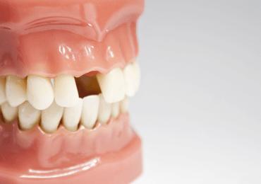 Missing Teeth Treatment Ottawa ON